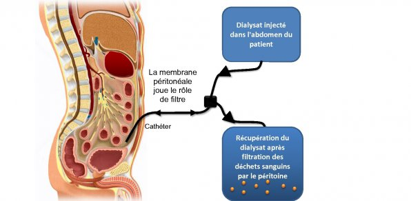 formation infirmiere dialyse peritoneale